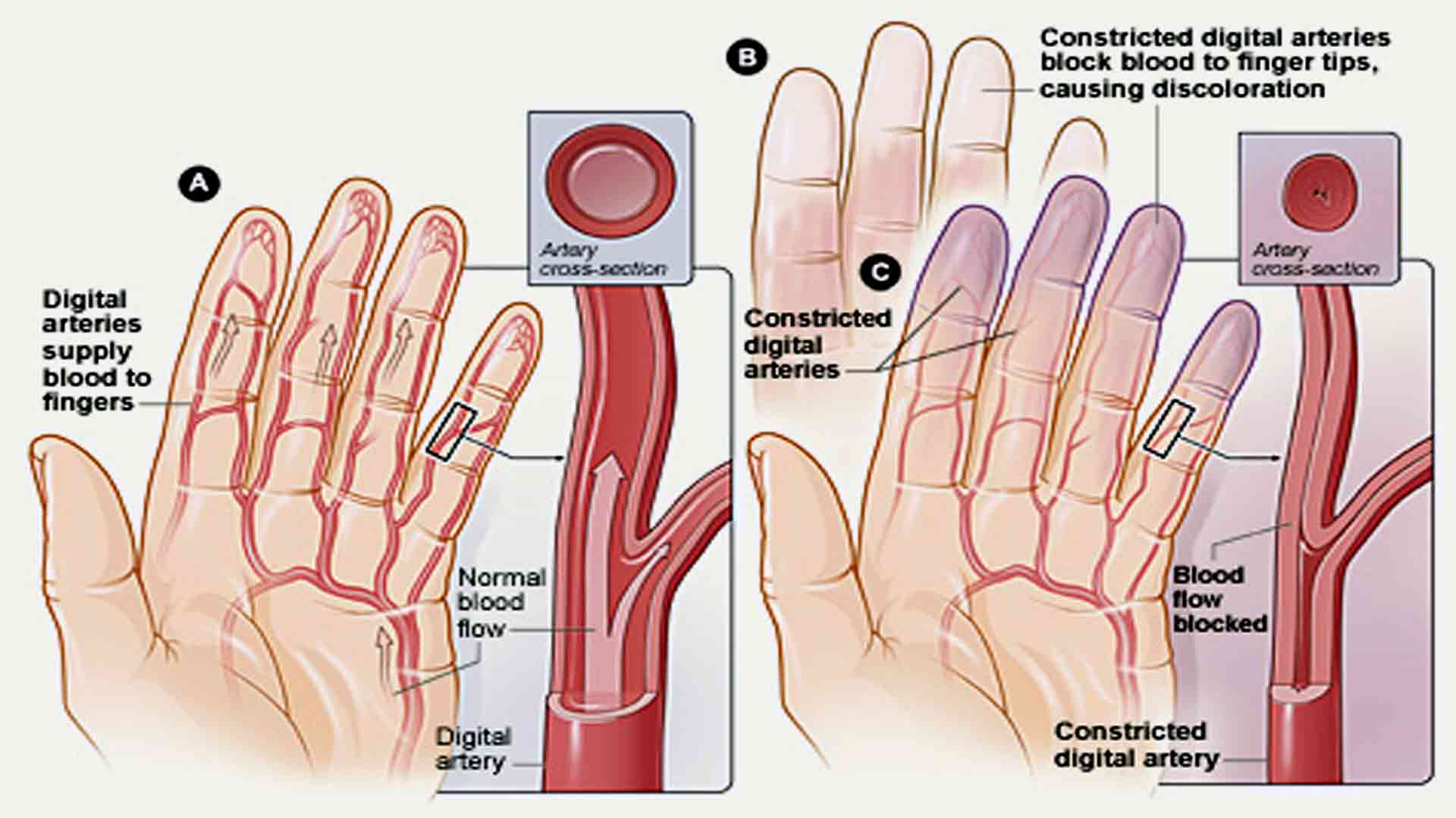 how to increase blood flow to skin